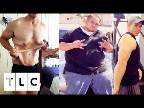 connectYoutube - Andrew Has So Much Excess Skin, He Has To Wear A Sports Bra! | My Extreme Excess Skin
