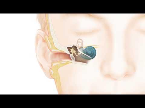 Wie funktioniert das natürliche Gehör? (Deutsch)