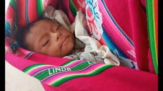 Bebé en Santa Cruz presenta desnutrición severa