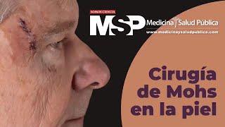 Dra. Sheila Valentín - cirugía de Mohs